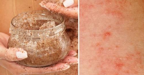 7 productos para la piel que los dermatólogos no usan y que tú tampoco deber..