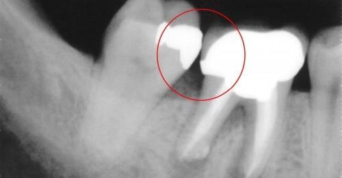 Señales de que tienes una infección en el diente y algunos consejos para ali..