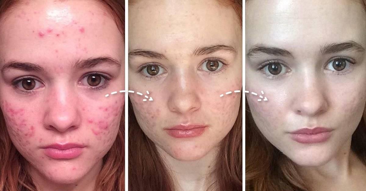 13 Sorprendentes razones por las cuales tienes acné