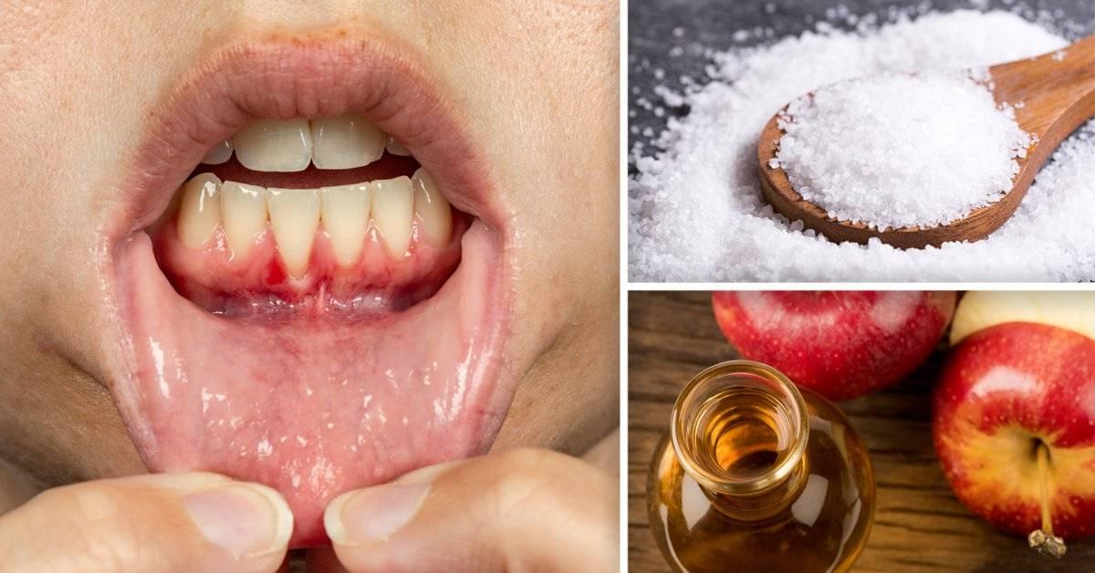 6 remedios caseros para aliviar una infección de encías