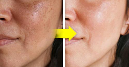 5 formas naturales de iluminar la piel de tu rostro