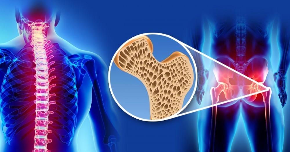 Remedio casero para regenerar cartílagos y fortalecer los huesos del cuerpo  entero | Bioguia