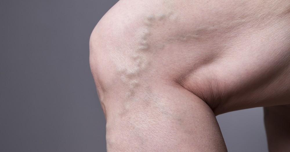 Por qué se forman las venas varicosas en las piernas y cómo ...