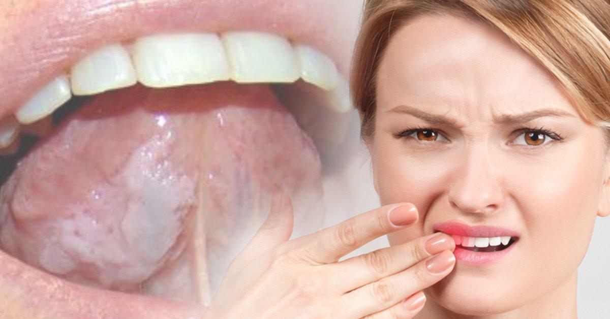 pupas en la lengua