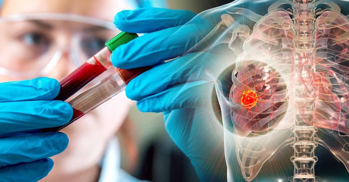 Un nuevo análisis puede detectar tumores 15 años antes de que aparezcan