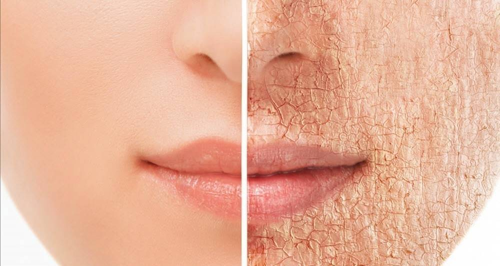 Recetas para tratar la piel seca en las distintas partes de tu cuerpo