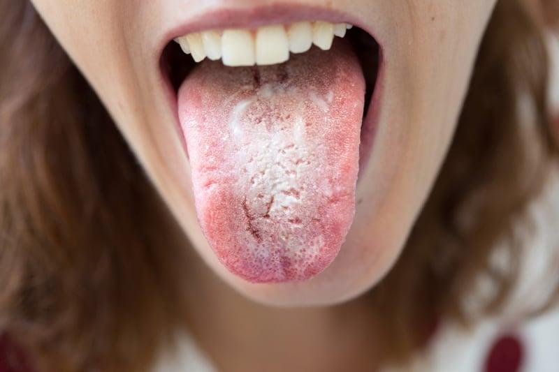 anemia lengua blanca