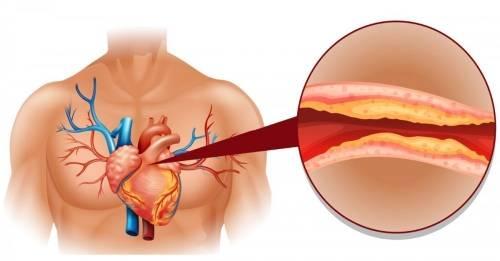 ¿Qué deberíamos hacer para reducir el colesterol en pocos días?