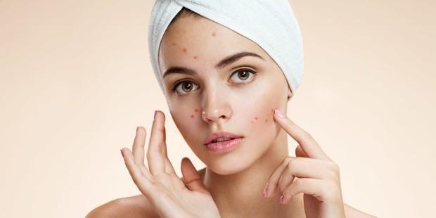 El acné es un trastorno de la piel que ocurre cuando los folículos pilosos se tapan con grasa y células cutáneas muertas
