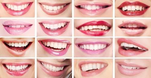 Qué Dice La Forma De Tu Sonrisa Sobre Ti Bioguia