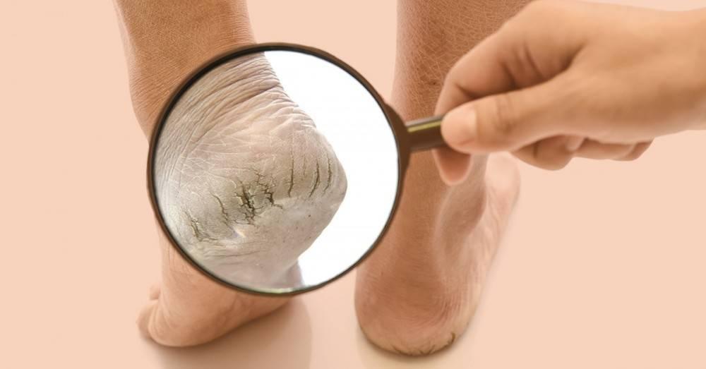 La solución definitiva para curar los pies secos y agrietados