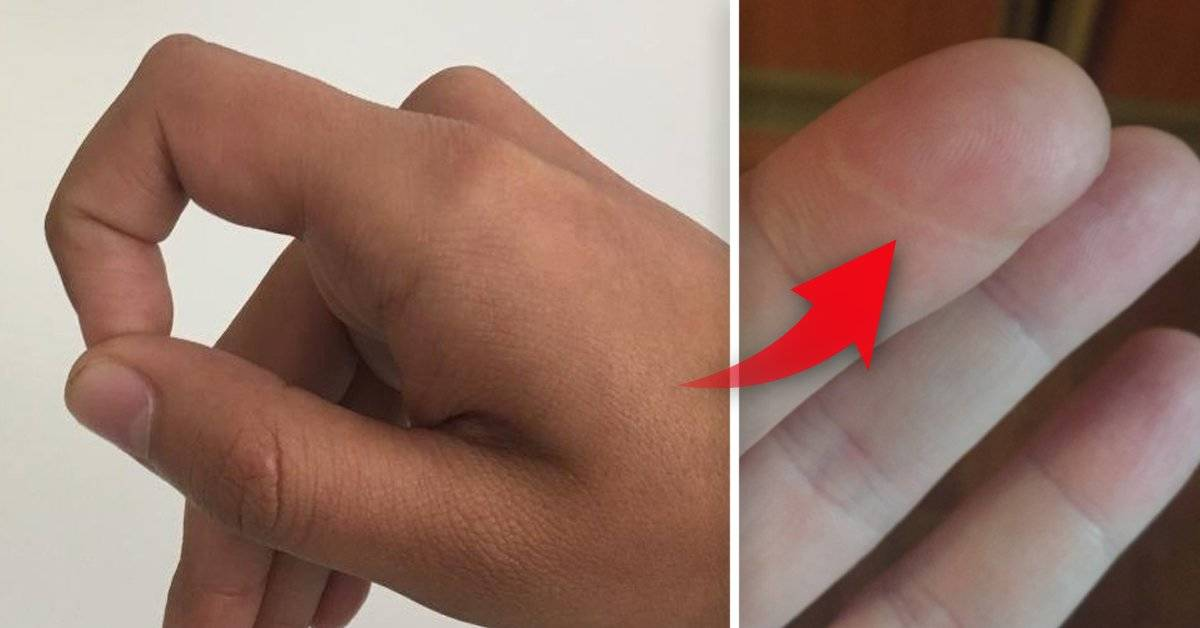 El desafío viral sobre el dedo índice de la mano izquierda que todo el mundo est
