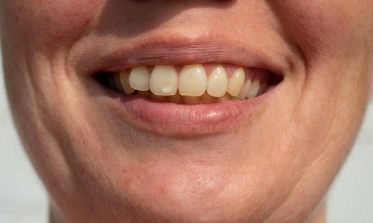 dientes manchas blancas