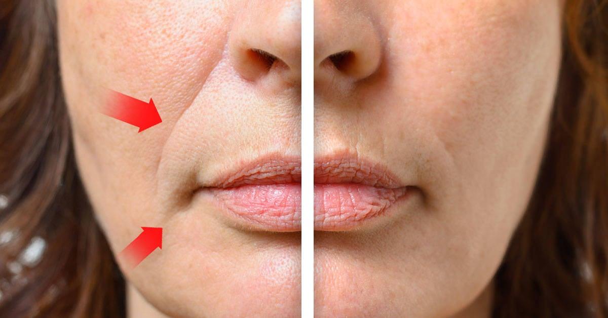Como eliminar completamente las arrugas alrededor de la boca