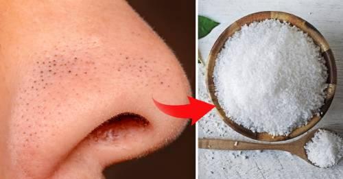 Solo necesitas un ingrediente para deshacerte de los puntos negros de tu cara: la sal