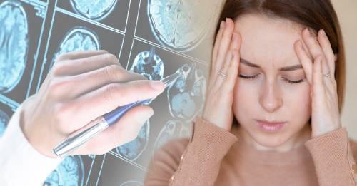Sufrir de migrañas te fortalece: Harvard afirma que sirven de protección