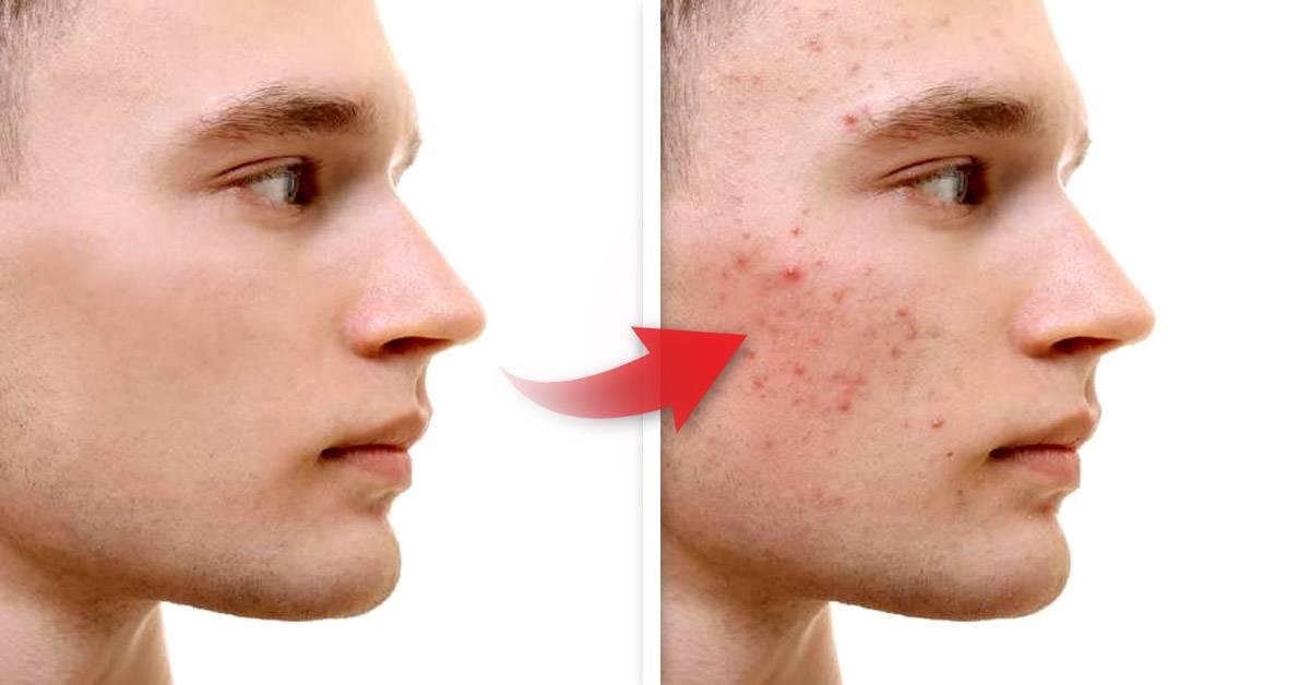 9 factores que pueden ser la causa de las espinillas en tu rostro
