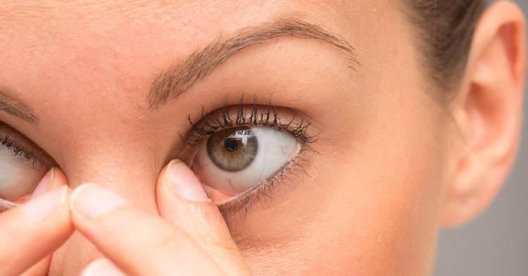 ¿Por qué salen los orzuelos en los ojos y cómo prevenirlos?