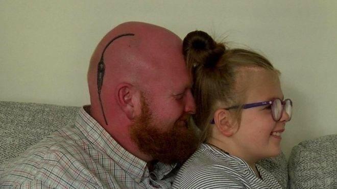 El conmovedor tatuaje de un padre para apoyar a su hija contra una rara enferm..