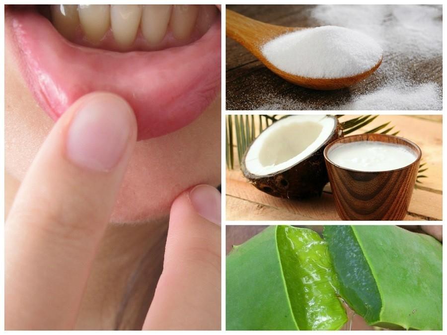 Remedios para las heridas de la boca