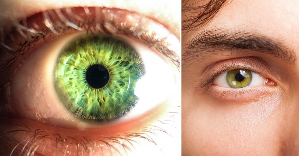 Porque los ojos se hacen amarillos