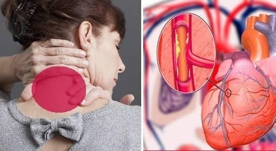 Los síntomas de infarto en las mujeres que nunca nos había revelado la medic..