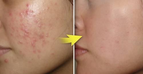 16 productos que resolverán tus problemas en la piel y puedes encontrar en cu..