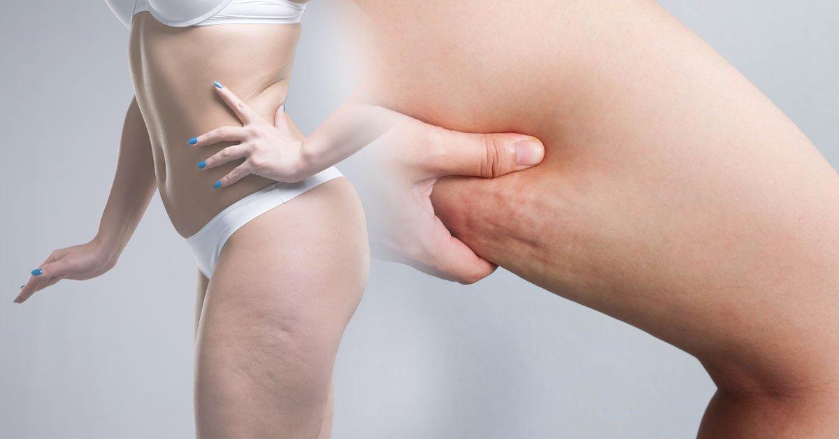 Los 2 Mejores Ejercicios Para Eliminar La Celulitis De Los Muslos Bioguia