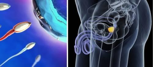 Este estudio podría revelar una sorprendente causa de infertilidad masculina